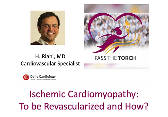 Ischemic Cardiomyopathy to be Revascularized and How?