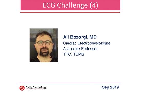 ECG Challenge (4)